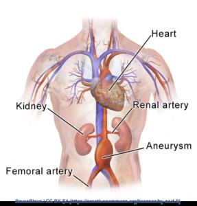 Abdominal Aortic Aneurysm Location