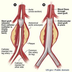 Aneurysm endovascular stent graft