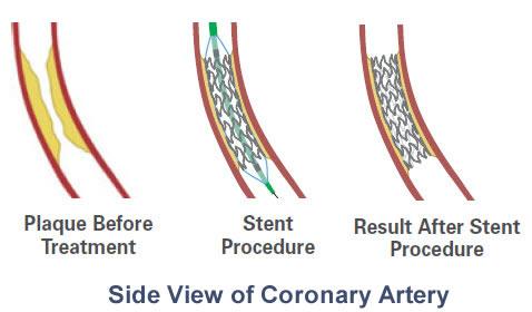 endovascular stent graft procedure illustration