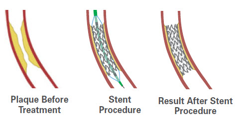 Stent Illustration - Before, During and After Stent Procedure