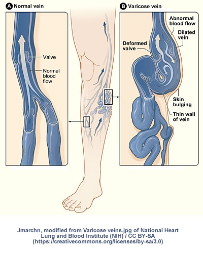 How are Varicose Veins formed?