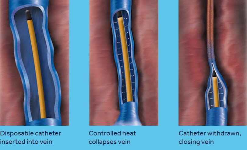 ClosureFast Procedure Overview