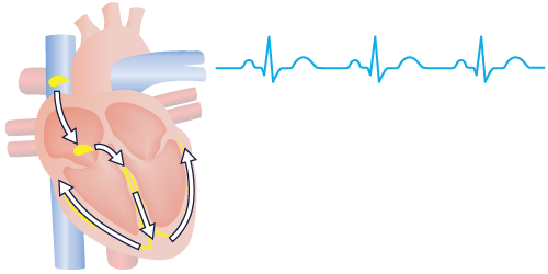 Normal Heartbeat