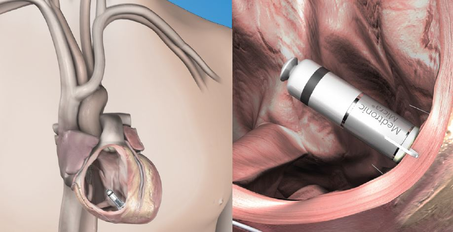 transcatheter pacing system implant