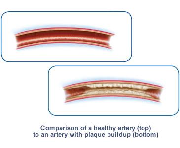 causes of Peripheral Arterial Disease (PAD)