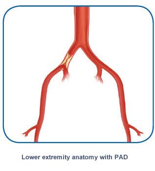 Lower extremity PAD