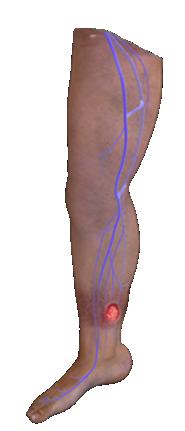 Venous Leg Ulcer